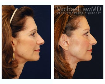 Facial Rejuvenation 393310