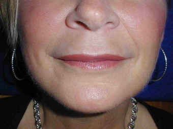 Juvederm to upper lip after 108815