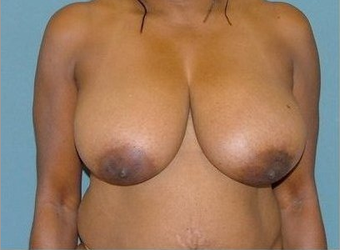 Breast Reduction before 97010