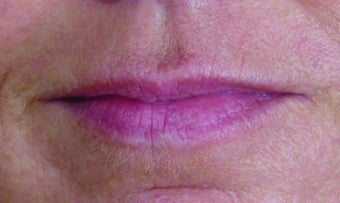 Restylane Injection before 324367