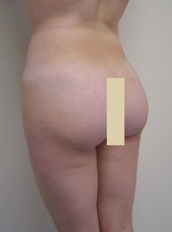Buttock augmentation and liposculpture