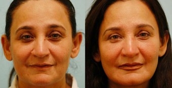 Fat Transfer/Fat Grafting/Facial Rejuvenation before 136341