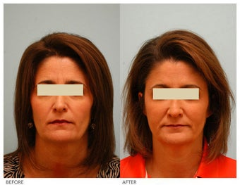 Injectable Fillers (Restylane/Perlane) before 136772