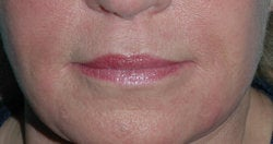 Lip Augmentation with Restylane before 118311