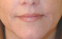 Lip enhancement (smoker's lines) after 91304