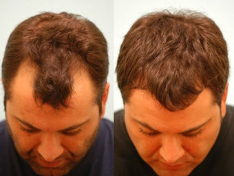 Hair Transplant before 133420