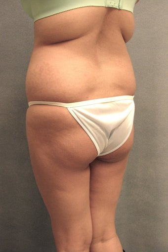 Buttock augmentation and liposculpture before 88874