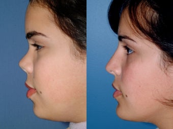 Revision rhinoplasty after 334261