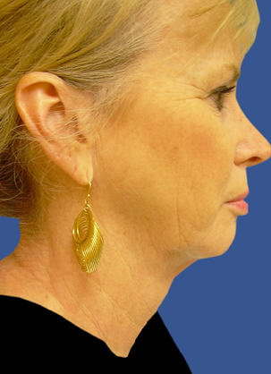 Jawline / Neck Lipo after 491293