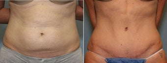 37 year old female with mini tummy tuck before 644125