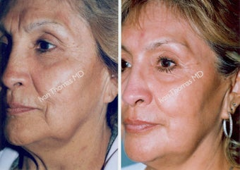 Non-Surgical Face Lift- Exoderm  before 242993