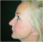 Facelift, Endoscopic Forehead LIft, Quadrilateral Blepharoplasty after 205365