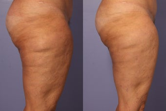 Cellulaze before 607928