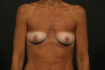 Breast Augmentation before 291229