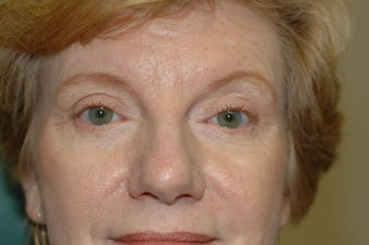 Cheek augmentation with cheek lift, ptosis repair, and elimination of festoons after 341472