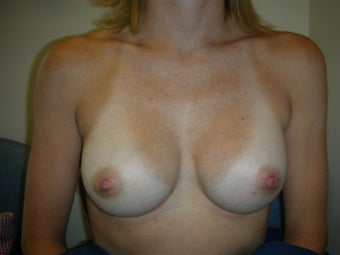 breast augmentation after 409249