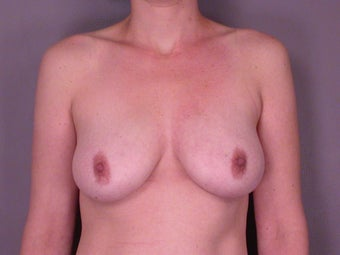 Breast Lift before 321463