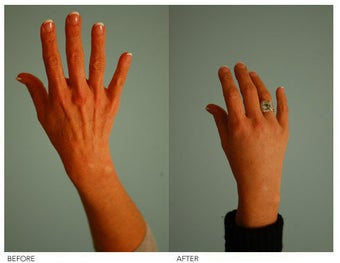 Hand Rejuvenation (with Fat Transfer) before 136441