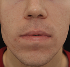 Acne Scarring after 426025