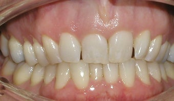 Invisalign used to correct flaring and overlapping teeth before 275729