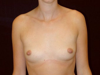 Breast augmentation before 293900