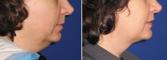 Chin / Neck Liposuction after 342954