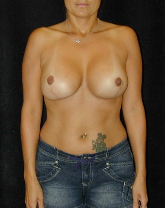 Breast Implant Revision  after 98371