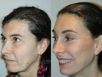 Full Facelift - Browlift, upper and  lower blepharoplasty, Lower Facelift after 139168