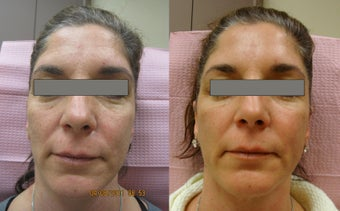 Fractional Erbium Laser Skin Resurfacing before 363698