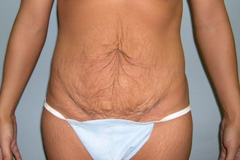 Tummy tuck before 237601