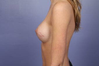 Breast Augmentation 467317
