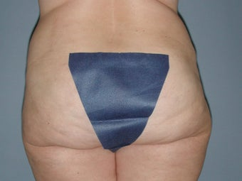 Liposuction hips, waist, upper and lower abdomen, lateral thighs 581418