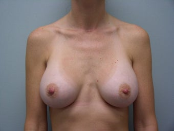 Breast Augmentation Patient  after 140681