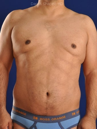Vaser Hi-Def Liposuction of abdomen, chest, back and flanks after 422693