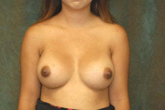 Women's Breast Augmentation: Redo after 553985