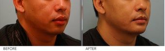Lip Reduction for Correction of Silicone before 361407