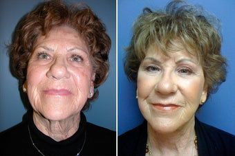 Facelift and periorbital Fat Transfer before 328470