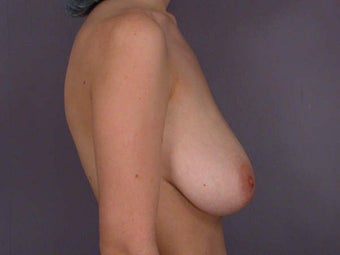 Breast Lift before 285364