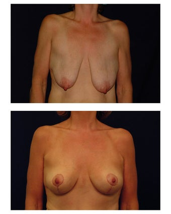 Breast Lift / Mastopexy before 286877