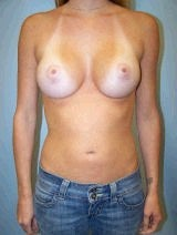 Breast Augmentation Surgery after 143996