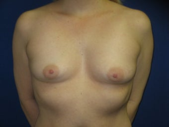 Augmentation Mammaplasty before 240508