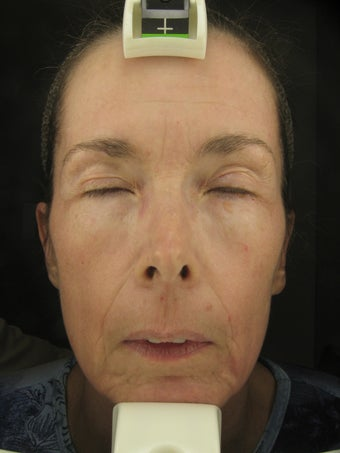 Fraxel Dual 1927 for Hyperpigmentation and wrinkles
