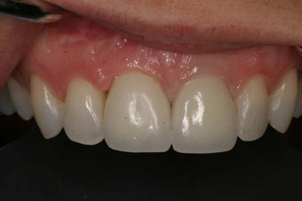 Dental implants before and after after 154679