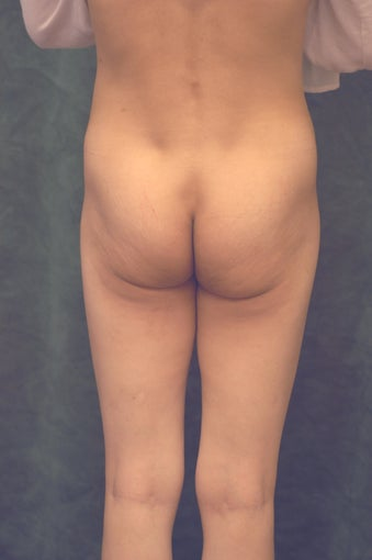 Women's Buttocks Augmentation  518116