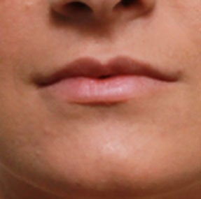 Non Surgical Lip Enhancement after 549863