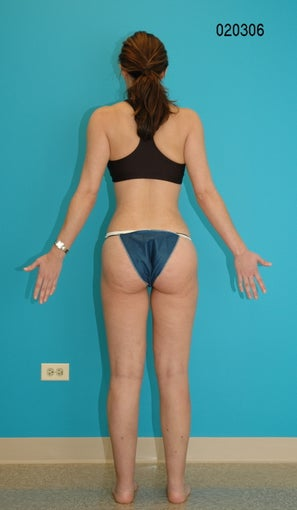Liposculpture of inner and outer thighs after 272109