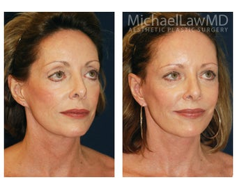 Cheek Augmentation 415259