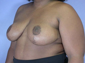 Breast Reduction after 285329