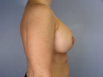 Breast Lift / Breast Augmentation  after 290989