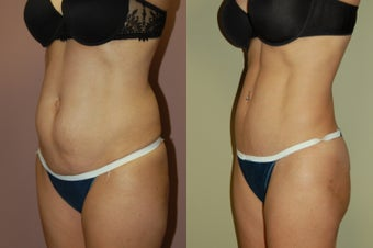 Tummy Tuck before 368140